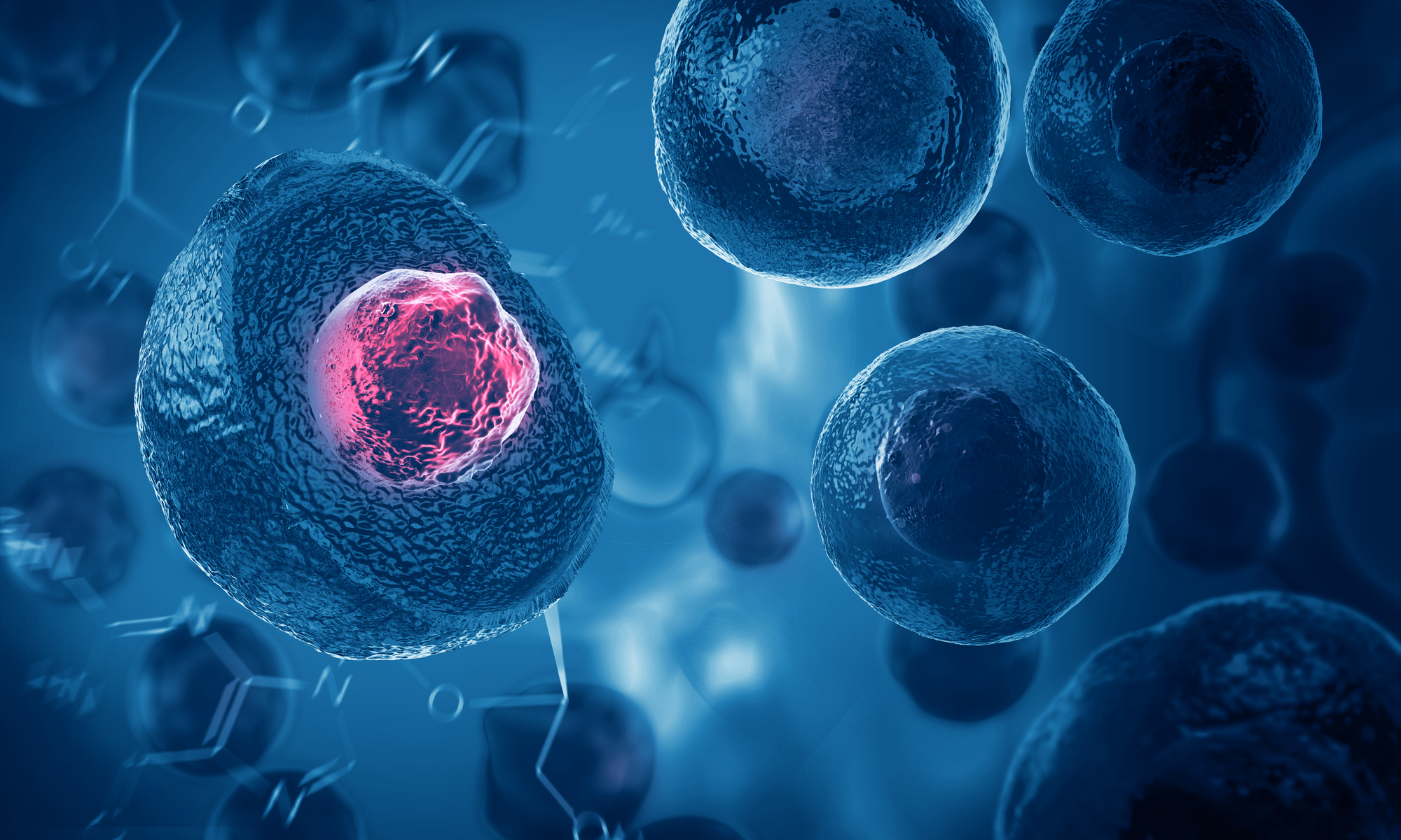 Stamcellstransplantation – ett steg fram men lång sträcka kvar
